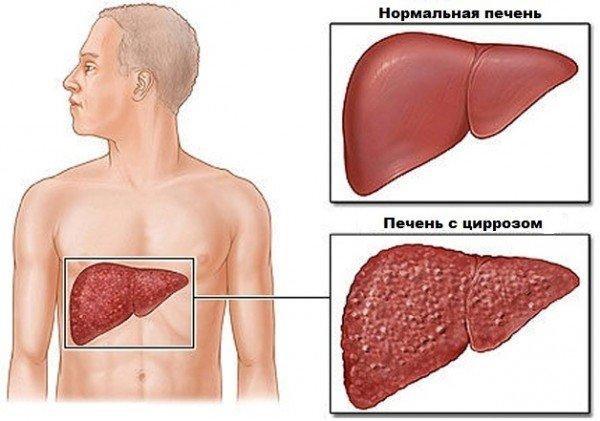 Схематичное изображение цирроза печени