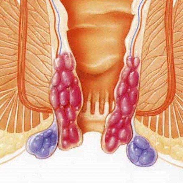 народные рецепты лечения паразитов чесноком
