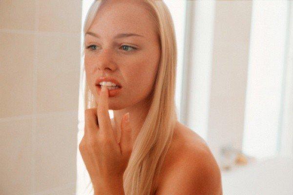 Втирание зубной пасты в поражённое герпесом место