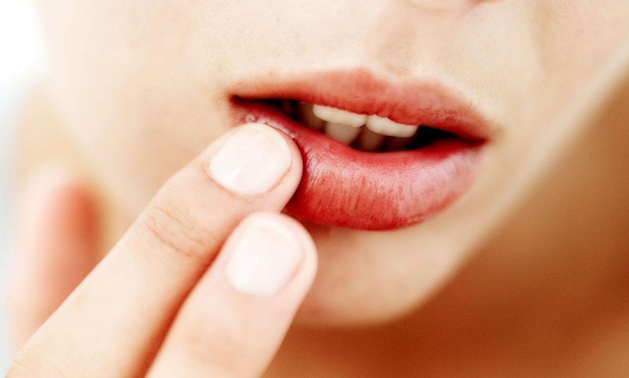 пищевая сода и йод от паразитов