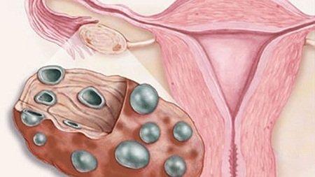 поликистоз яичников схема