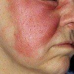 Эритематозное рожистое воспаление