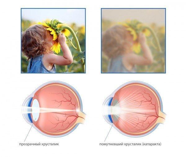 Как меняется чёткость зрения при катаракте, схема