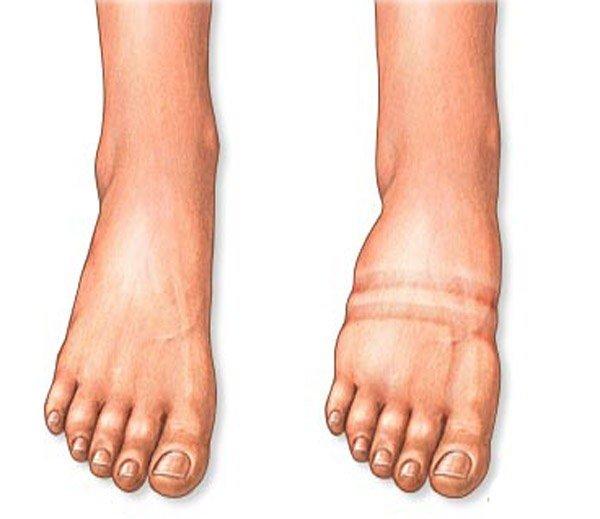 нормальная нога и нога с отёком