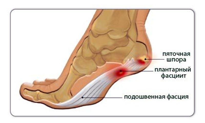 Болят ноги лечить в домашних условиях