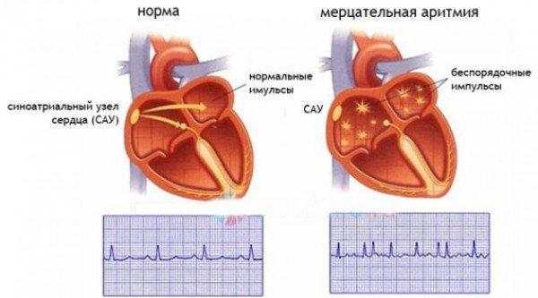 Схема: здоровое сердце и сердце с мерцательной аритмией