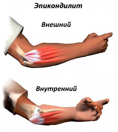 Мышцы приводящие плечевой сустав в движение