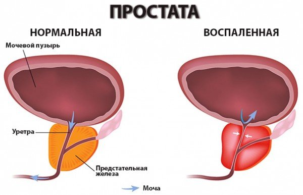 лечебные