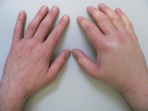 Лимфостаз руки