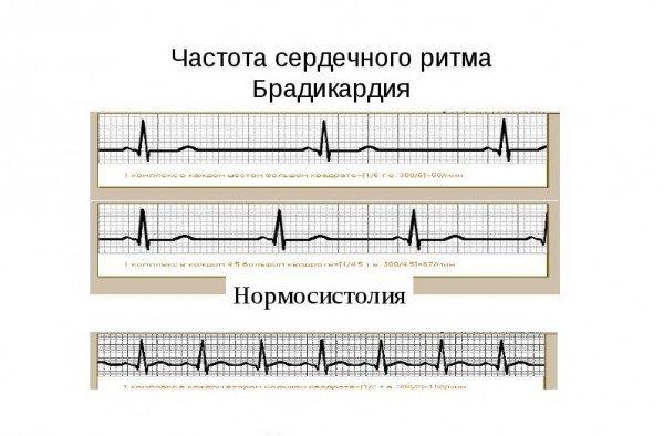 ЭКГ при брадикардии и нормальной работе сердца