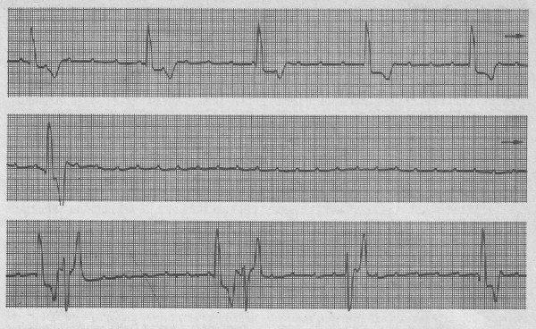 Синдром Морганьи-Эдамса-Стокса на кардиограмме