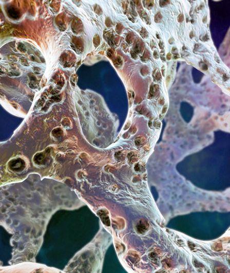 Кость с остеопорозом под микроскопом