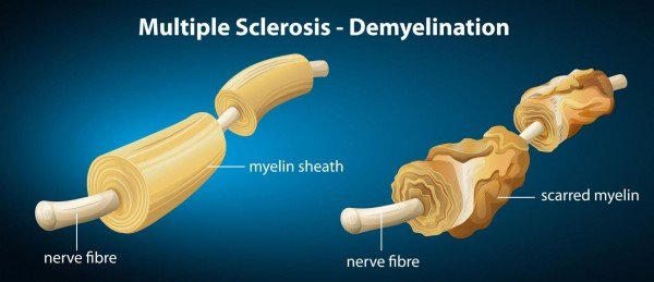 Нервные волокна здорового и больного человека