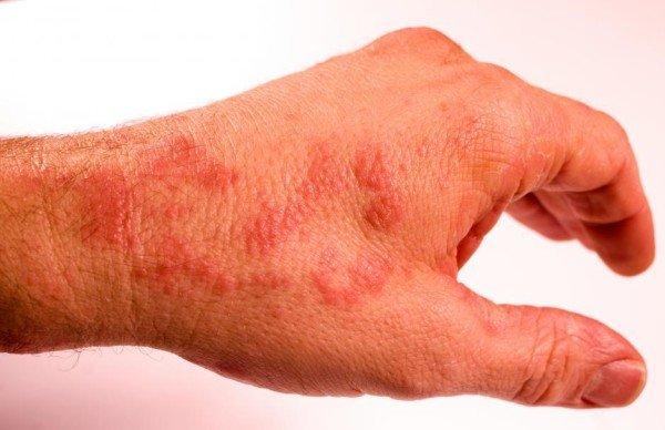 Покраснение кожи рук