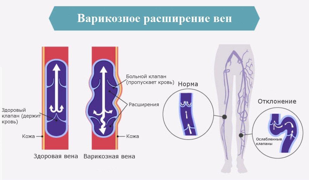 диета при варикозе вен на ногах
