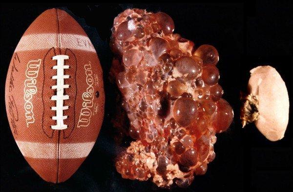 Мяч, почка, поражённая поликистозом, и здоровый орган