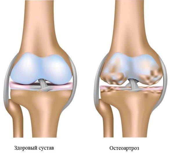 Здоровый сустав и сустав при остеоартрозе