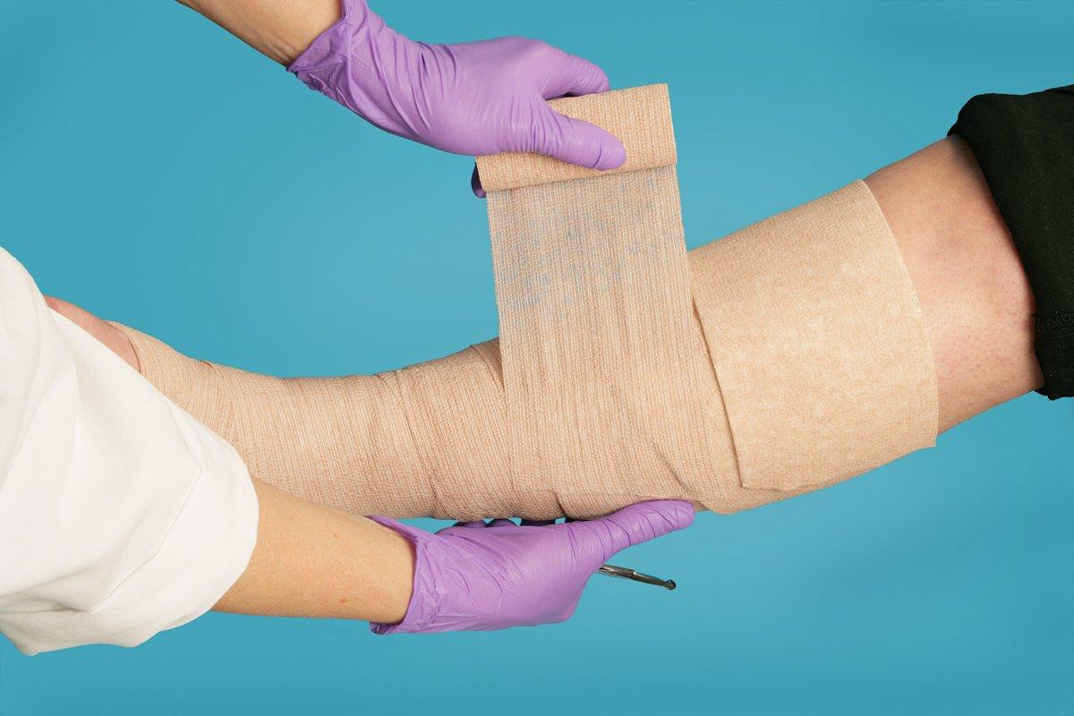 Трофическая язва на ноге – Как лечить трофическую язву