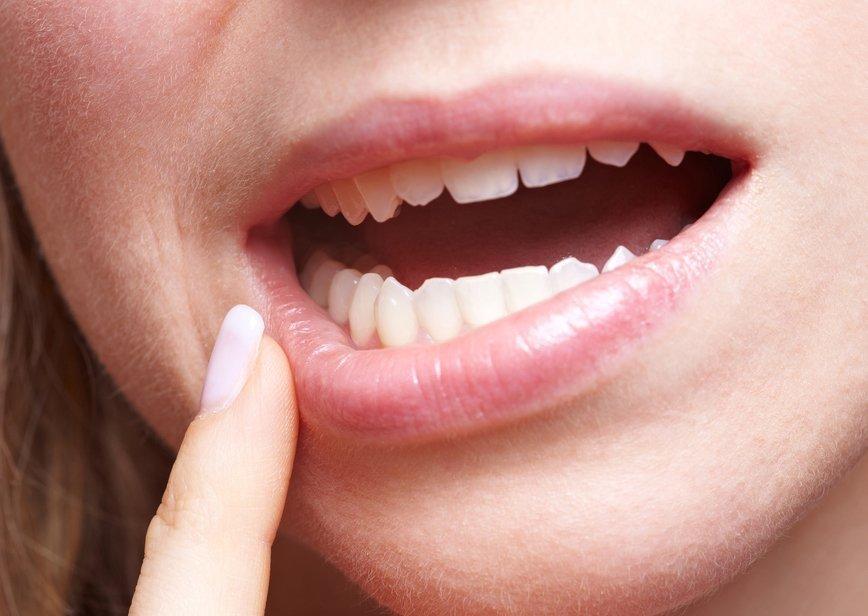 Что такое стоматит – Симптомы стоматита