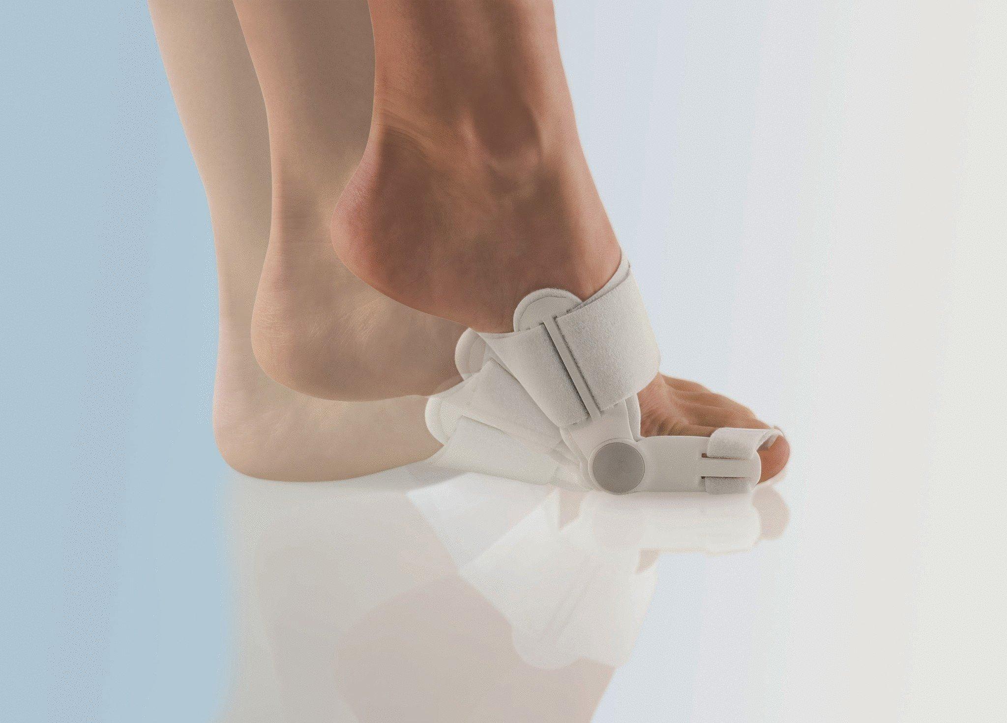 Народное лечение шишек на ногах