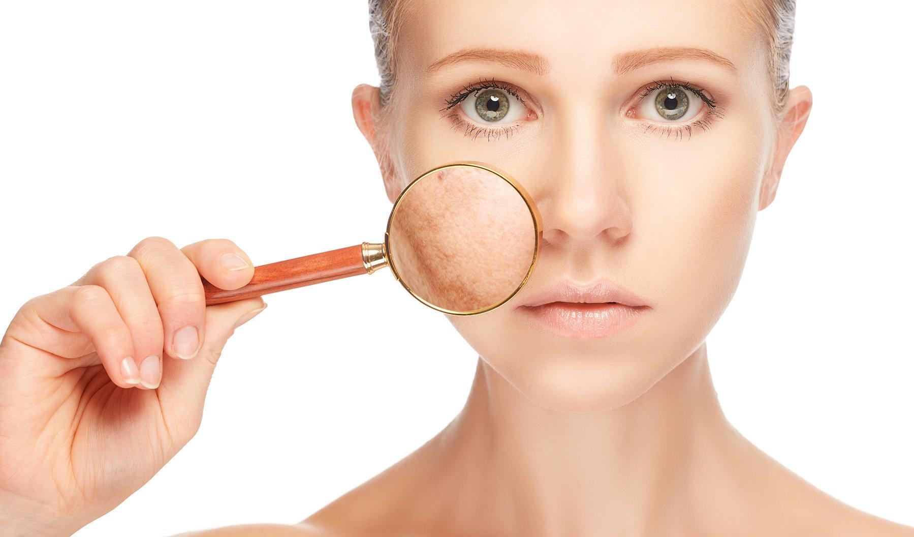 Эффективные средства лечения купероза на лице