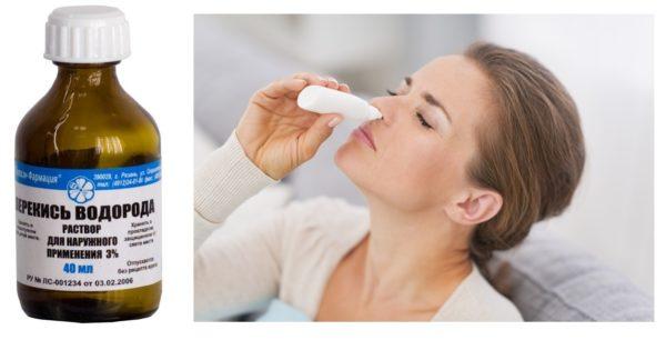 Девушка закапывает нос раствором перекиси