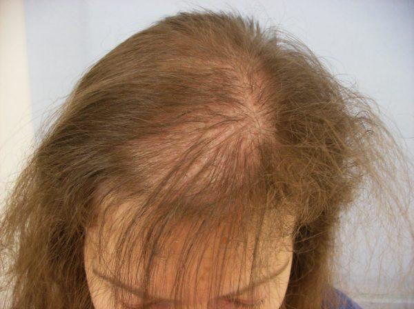 У женщины на голове виднеется лысина