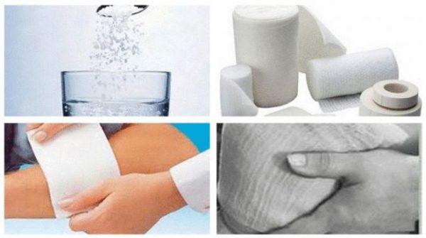 Схема применения солевых компрессов