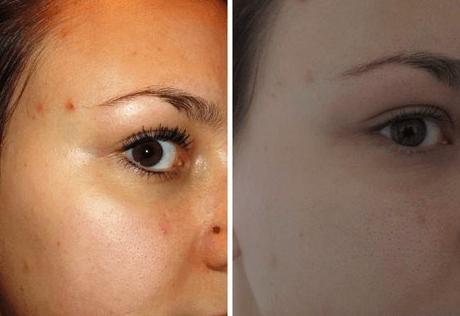 До и после применения болтушки