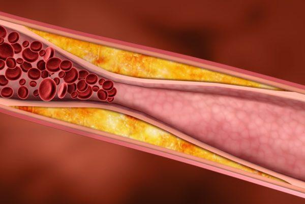 Сужение сосуда из-за отложений холестерина