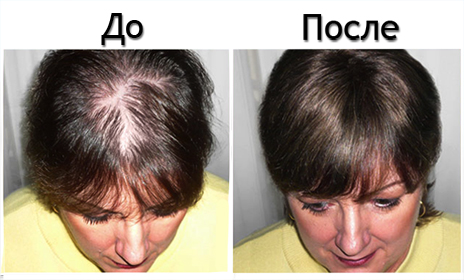 Состояние волос при облысении и после лечения