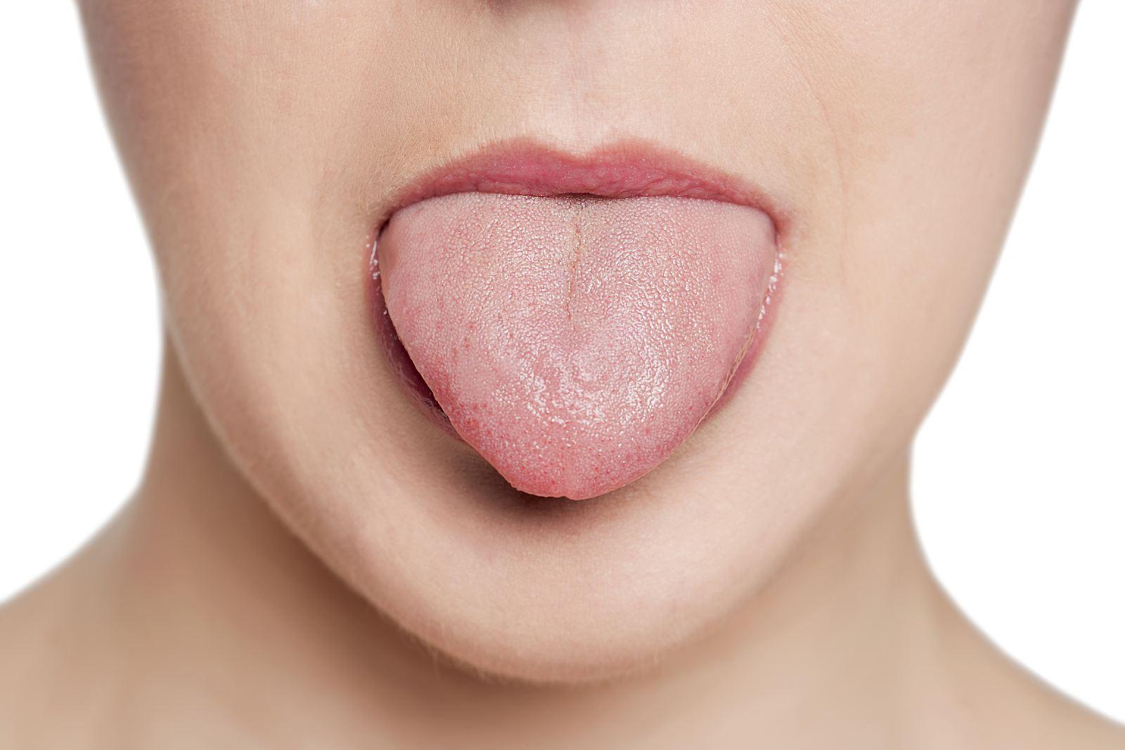 Воспаление слизистой оболочки полости рта